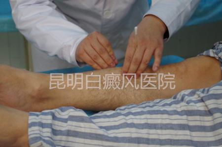 早期白癜风治疗