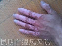 泛发型白癜风治疗