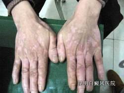 白癜风初发时有哪些症状