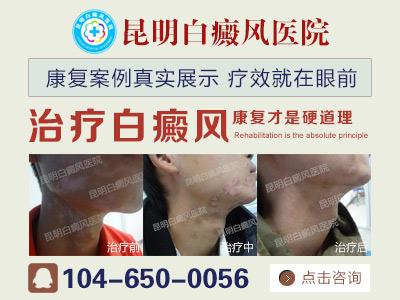昆明白癜风李作梅:怎么预防白癜风疾病