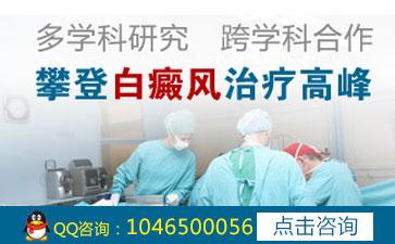 昆明白斑治疗医院怎么预防男性白癜风