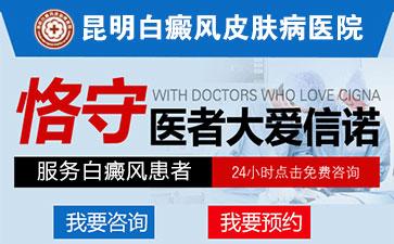 云南专业治疗白癜风的医院