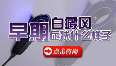 昆明白癜风医院李作梅