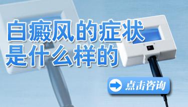云南白癜风医院护国路热情:男性白癜风有哪些症状