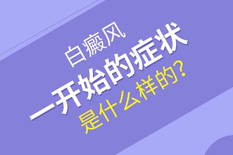 云南哪里治疗白癜风?初期白癜风有哪些症状
